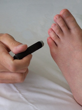 Picture of foot.